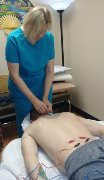Electro-Acupuncture in Phoenix by Total Wellness Acupuncture